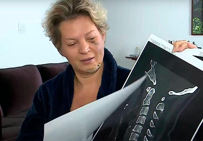 Joice Hasselmann usou remédio associado com casos de apagão de memória
