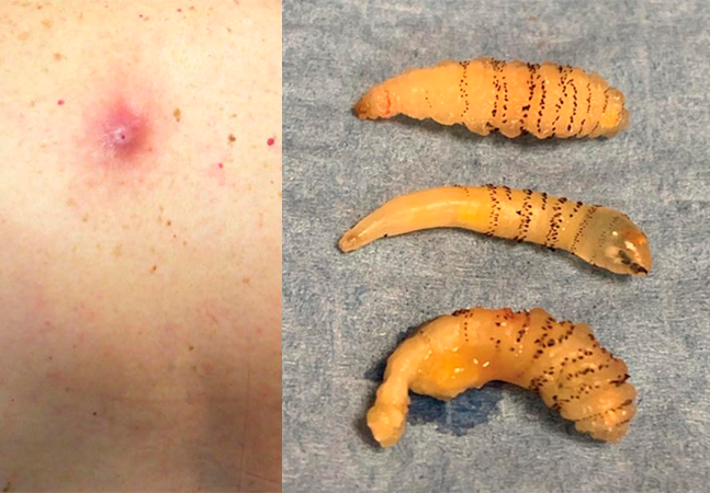 Mulher com 'picada de mosquito' nas costas tinha larvas crescendo no corpo