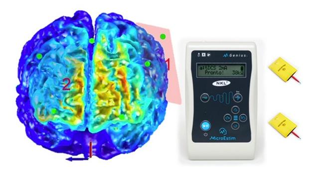 Cerebro y electrodos