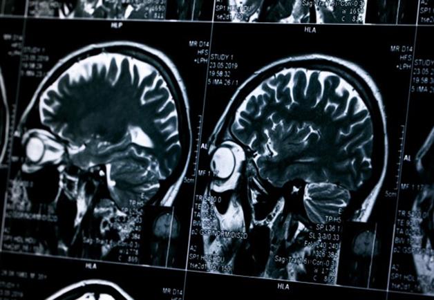 Resonancia del paciente de Parkinson