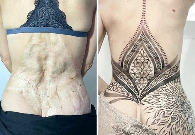 Estas tatuagens ressignificaram cicatrizes e manchas de nascença