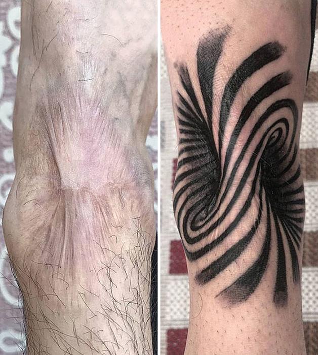 Tatuagem sobre cicatriz