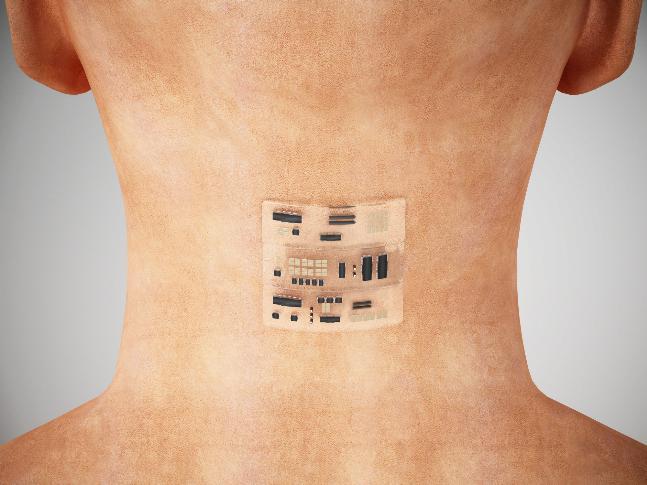 'Chip da beleza': implantes hormonais para corpo perfeito podem aumentar clitóris e alterar voz