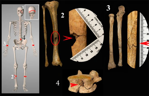 Outros pontos precisos de fratura encontrados no esqueleto milanês