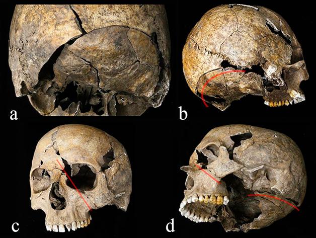 """As fraturas diversas encontradas no crânio: no ponto """"d"""", o indício de tentativa de decapitação"""