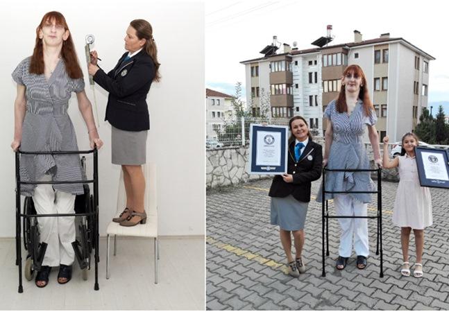 Mulher de 24 anos se torna a mais alta do mundo com 2,15 metros