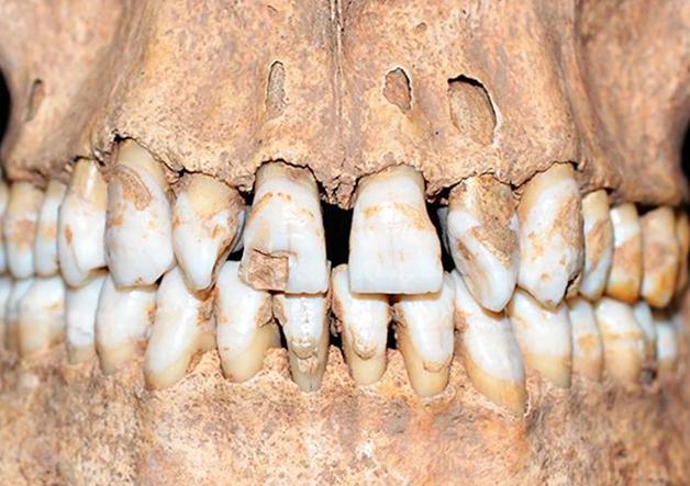 """Os dentes """"tortos"""" da ossada, entre outras características, podem ter sido motivo da extrema tortura"""