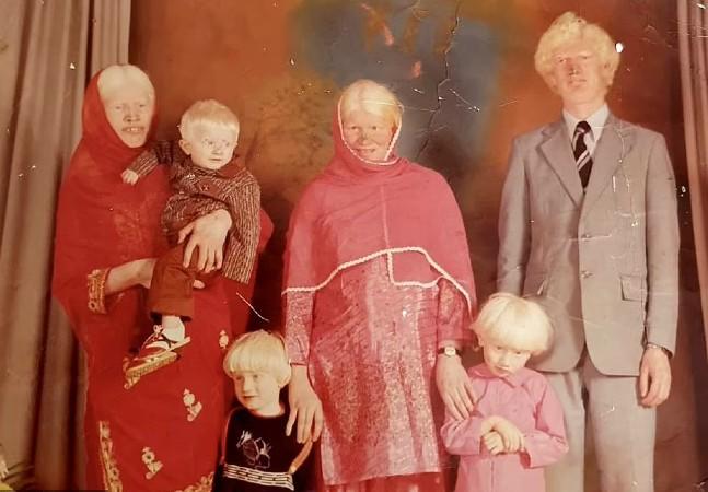 Família com 15 membros albinos reclama recorde mundial e fala sobre preconceito
