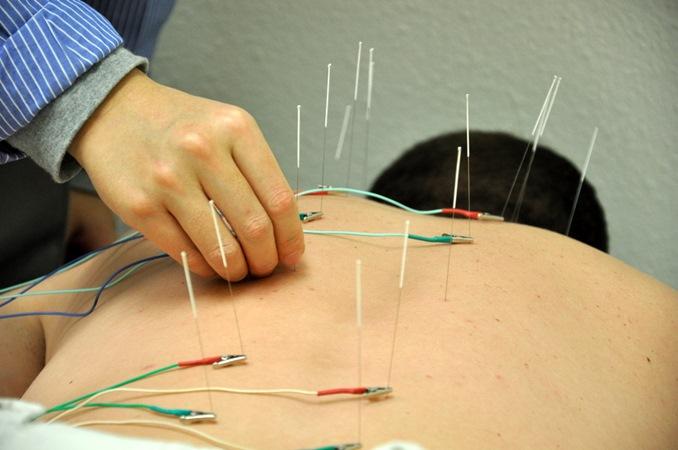 Empresária tem pulmão perfurado durante sessão de acupuntura para aliviar dor no pescoço